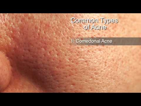 How to Treat Different Types of Acne